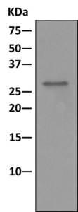 Immunoprecipitation - Anti-RPL8 antibody [EPR11630] (ab169538)