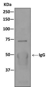Immunoprecipitation - Anti-KBTBD11 antibody [EPR10056(2)(B)] (ab169551)