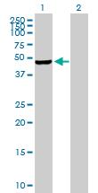 Western blot - Anti-PIP5K2 gamma antibody (ab169572)