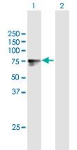 Western blot - Anti-Lipolysis Stimulated Lipoprotein Receptor antibody (ab169583)