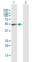 Western blot - Anti-FAM134B  antibody (ab169584)