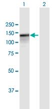 Western blot - Anti-PARG antibody (ab169639)