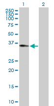 Western blot - Anti-RALGPS2 antibody (ab169646)