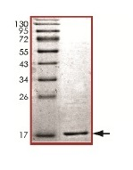 SDS-PAGE - gamma Synuclein protein (His tag) (ab169723)