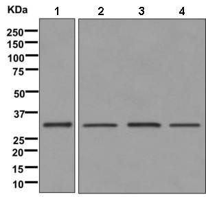 Western blot - Anti-HSD17B8 antibody [EPR12084(B)] (ab169752)