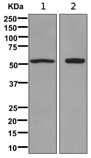 Western blot - Anti-ACCN1 antibody [EPR11029] (ab169768)