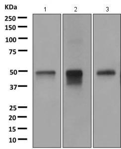 Western blot - Anti-CD299 antibody [EPR11211] (ab169783)