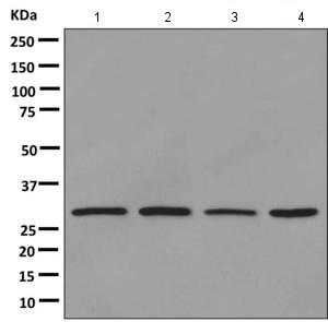 Western blot - Anti-TAF9 antibody [EPR12075(B)] (ab169784)