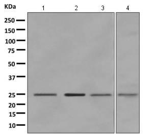 Western blot - Anti-SPC24 antibody [EPR11548(B)] (ab169786)