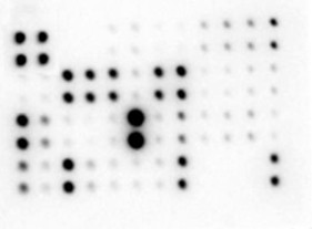 Multiplex Protein Detection - Mouse Atherosclerosis Antibody Array - Membrane (22 targets) (ab169807)