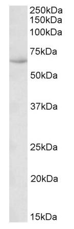 Western blot - Anti-STCH antibody (ab169830)