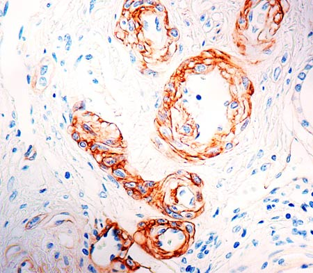 Immunohistochemistry (Formalin/PFA-fixed paraffin-embedded sections) - Anti-Laminin alpha 5 antibody [4C7] (ab17107)