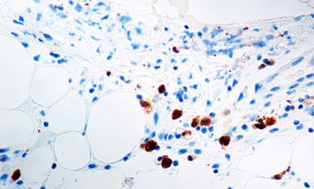 Immunohistochemistry (Formalin/PFA-fixed paraffin-embedded sections) - Anti-ALK antibody [5A4] (ab17127)