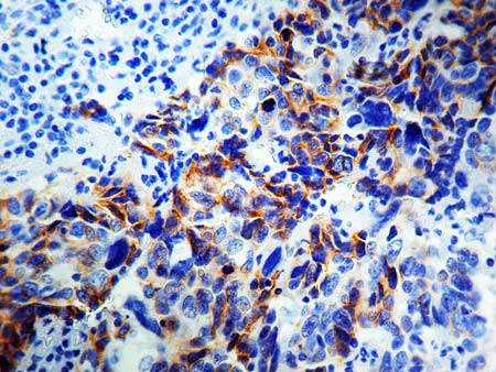 Immunohistochemistry (Formalin/PFA-fixed paraffin-embedded sections) - Anti-NCAM antibody [1213C3.D5], prediluted (ab17235)