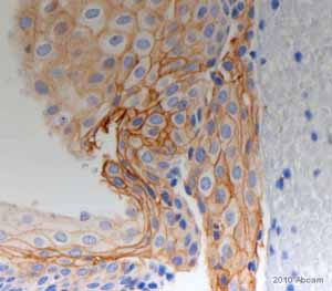 Immunohistochemistry (Formalin/PFA-fixed paraffin-embedded sections) - Tissue Factor antibody [2K1] (ab17375)