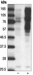 Western blot - Phosphoserine/threonine antibody (ab17464)