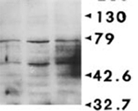 Western blot - Phosphoserine antibody [3C171] (ab17465)