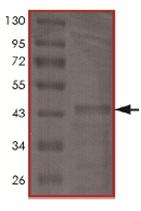 - Tau441 protein (Human) (ab170407)