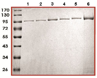 SDS-PAGE - PAPD4 protein (Active) (ab170409)