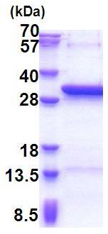 SDS-PAGE - ZC4H2 protein (His tag) (ab171482)