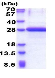 SDS-PAGE - OBFC2A protein (His tag) (ab171488)