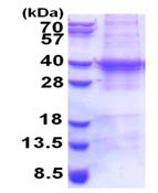 SDS-PAGE - UBC3B protein (His tag) (ab171503)