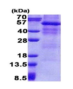 SDS-PAGE - GPNMB protein (His tag) (ab171588)