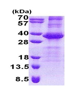 SDS-PAGE - NEURL2 protein (His tag) (ab171589)