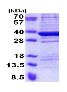 SDS-PAGE - C18orf10 protein (His tag) (ab171590)
