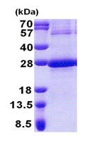 SDS-PAGE - NDUFB9 protein (His tag) (ab171600)