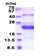 SDS-PAGE - SMCP protein (His tag) (ab171603)
