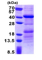 SDS-PAGE - HEPACAM2 protein (His tag) (ab171604)