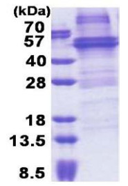 SDS-PAGE - NOB1 protein (His tag) (ab171677)