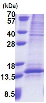 SDS-PAGE - UQCRQ protein (His tag) (ab171691)