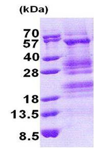 SDS-PAGE - TADA3L protein (His tag) (ab171703)