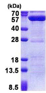 SDS-PAGE - PPM1F protein (His tag) (ab171704)