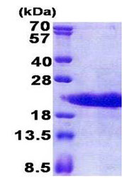 SDS-PAGE - PTMA protein (His tag) (ab171705)