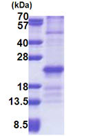 SDS-PAGE - ZNHIT3 protein (His tag) (ab171718)