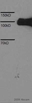 Western blot - 6X His tag® antibody [HIS.H8] (ab18184)