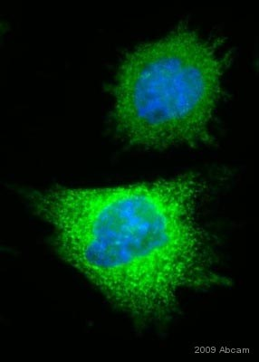 Immunocytochemistry/ Immunofluorescence - 6X His tag® antibody [HIS.H8] (ab18184)