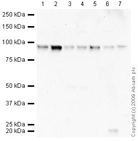 Western blot - FOXK1 antibody - ChIP Grade (ab18196)