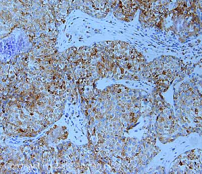 Immunohistochemistry (Formalin/PFA-fixed paraffin-embedded sections) - Anti-LAMP2A antibody (ab18528)