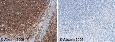 Immunohistochemistry (Formalin/PFA-fixed paraffin-embedded sections)-CD45 antibody [Hle-1](ab18613)