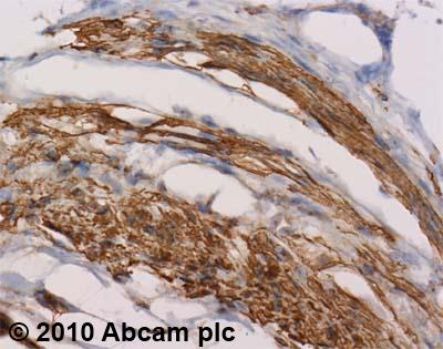 Immunohistochemistry (Formalin/PFA-fixed paraffin-embedded sections) - Anti-SDF1 antibody (ab18919)