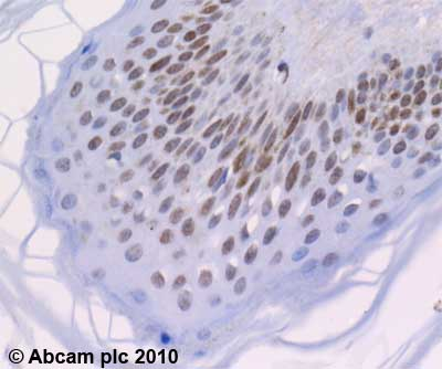 Immunohistochemistry (Formalin/PFA-fixed paraffin-embedded sections)-Histone H2A antibody(ab18975)