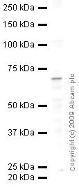 Western blot - CD62E antibody (ab18981)