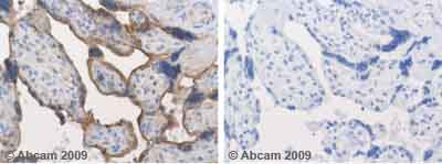 Immunohistochemistry (Formalin/PFA-fixed paraffin-embedded sections) - Aromatase antibody (ab18995)