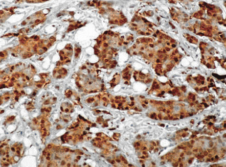 Immunohistochemistry (Formalin/PFA-fixed paraffin-embedded sections) - Hsc70 antibody [1B5] (ab19136)