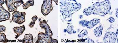 Immunohistochemistry (Formalin/PFA-fixed paraffin-embedded sections) - TNF Receptor I antibody (ab19139)