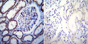 Immunohistochemistry (Formalin/PFA-fixed paraffin-embedded sections)-Anti-Calcium Sensing Receptor antibody [5C10, ADD](ab19347)